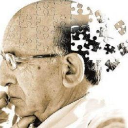 مدیرعامل انجمن آلزایمر ایران:در هر سه ثانیه یک نفر در جهان به آلزایمر مبتلا می شود