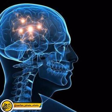 ۶ قاتل سلول های عصبی را بشناسید