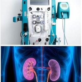 تصویر بالا: دستگاه ۷۷ کیلویی دیالیزوتصویر پایین: کلیهی ۳۰۰ گرمی