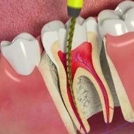 انیمیشنی از عصب کشی دندان