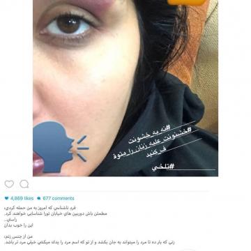 مريم معصومى بازيگر سينما و تلويزيون امروز مورد حمله افراد ناشناس قرار گرفت!