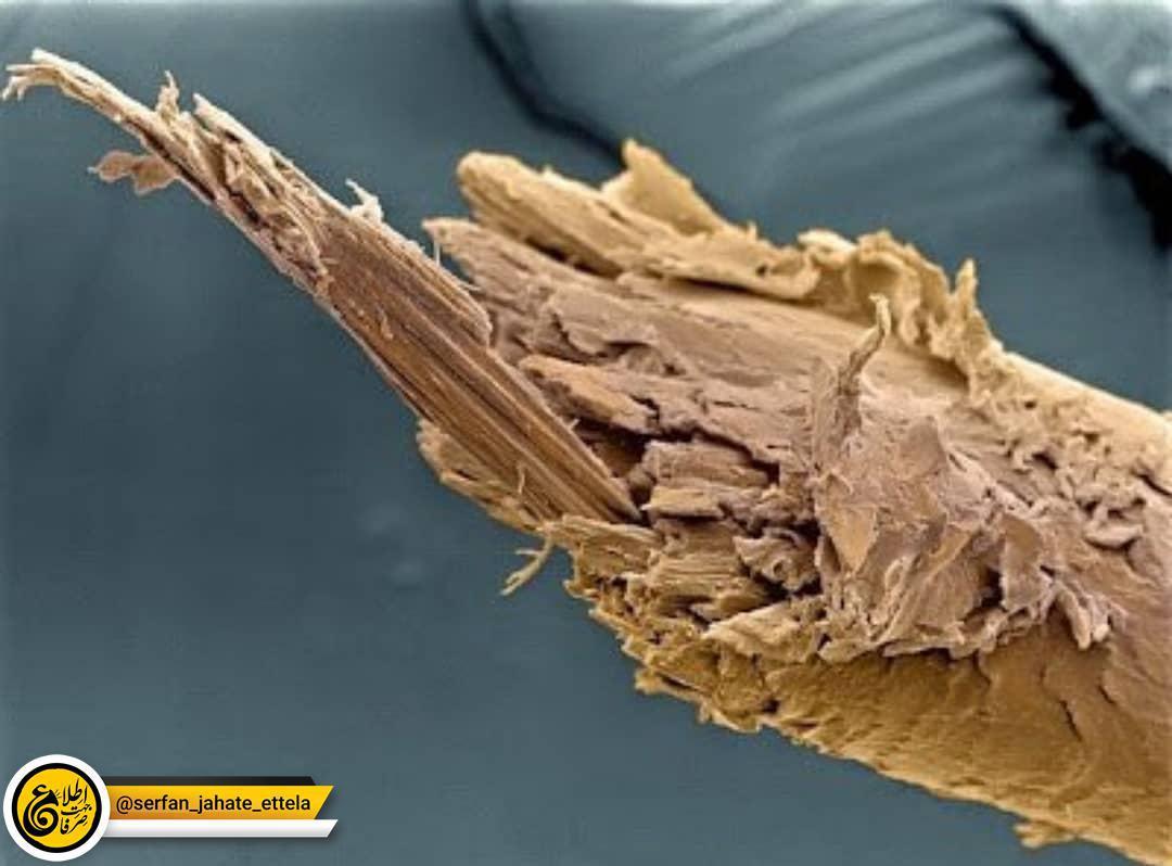 تصویر مربوط به انتهای موی یک انسان