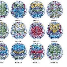 کشف ۱۲ حالت مخفی در مغز