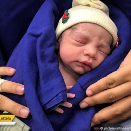 زنی در برزیل که با رحم پیوندی از یک زن مُرده، توانسته بود باردار شود،