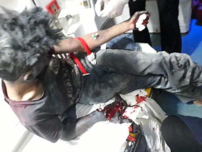 انفجار ترقه دست انگشتان نوجوان اصفهانی را قطع کرد