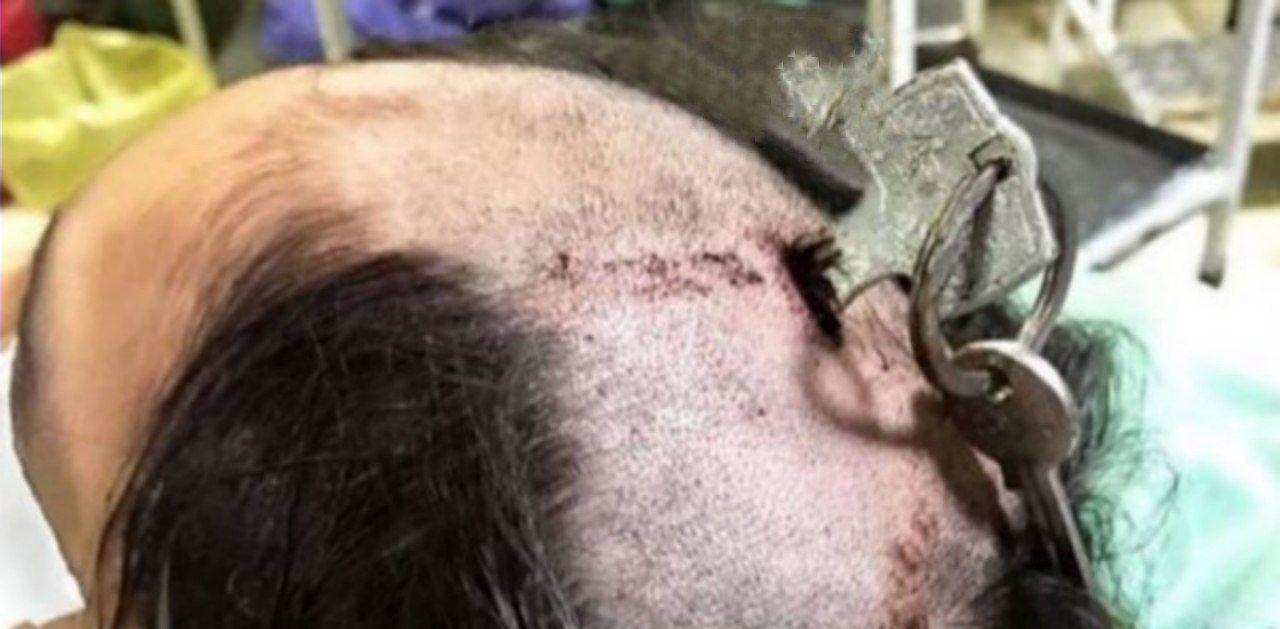 بازهم حادثه کودک آزاری با هدف تنبیه کودک؛این بار در قزوین