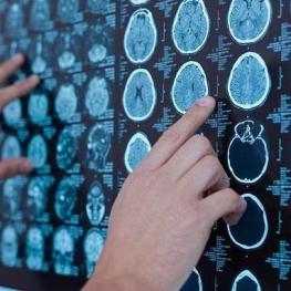 انقلاب در درمان تومور مغزی با یک داروی جدید