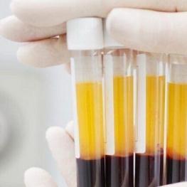 پلاسما درمانی تا ۶۰ درصد در درمان کرونا موثر است