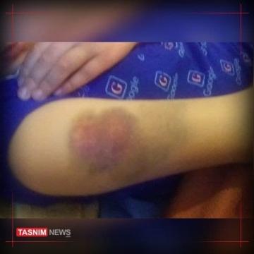 تنبیه بدنی دانشآموز پایه سوم ابتدایی در قزوین
